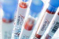Coronavirus, sono meno di 100 i casi positivi in Puglia