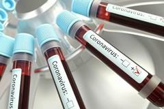 Coronavirus, 611 nuovi casi in Puglia. Più di un terzo nel barese