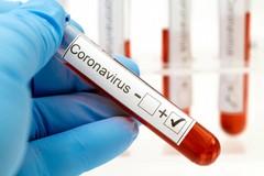 Coronavirus, 29 casi e un decesso in provincia di Bari. 89 positivi in Puglia